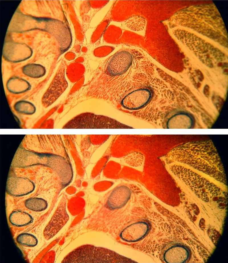 Fig. 12. Demonstration of the selective autofocus, histological routine slice (rat embryo), bright-field, unfiltered incandescent light, student microscope Leitz HM-Lux, Phaco 10/0.25 (basic achromatic objective, Will Wetzlar), eyepiece: Periplan GF 10x/18 (for eyeglasses wearers), extreme edge blurring, automatic focusing for the image center (above) and the image periphery (below).