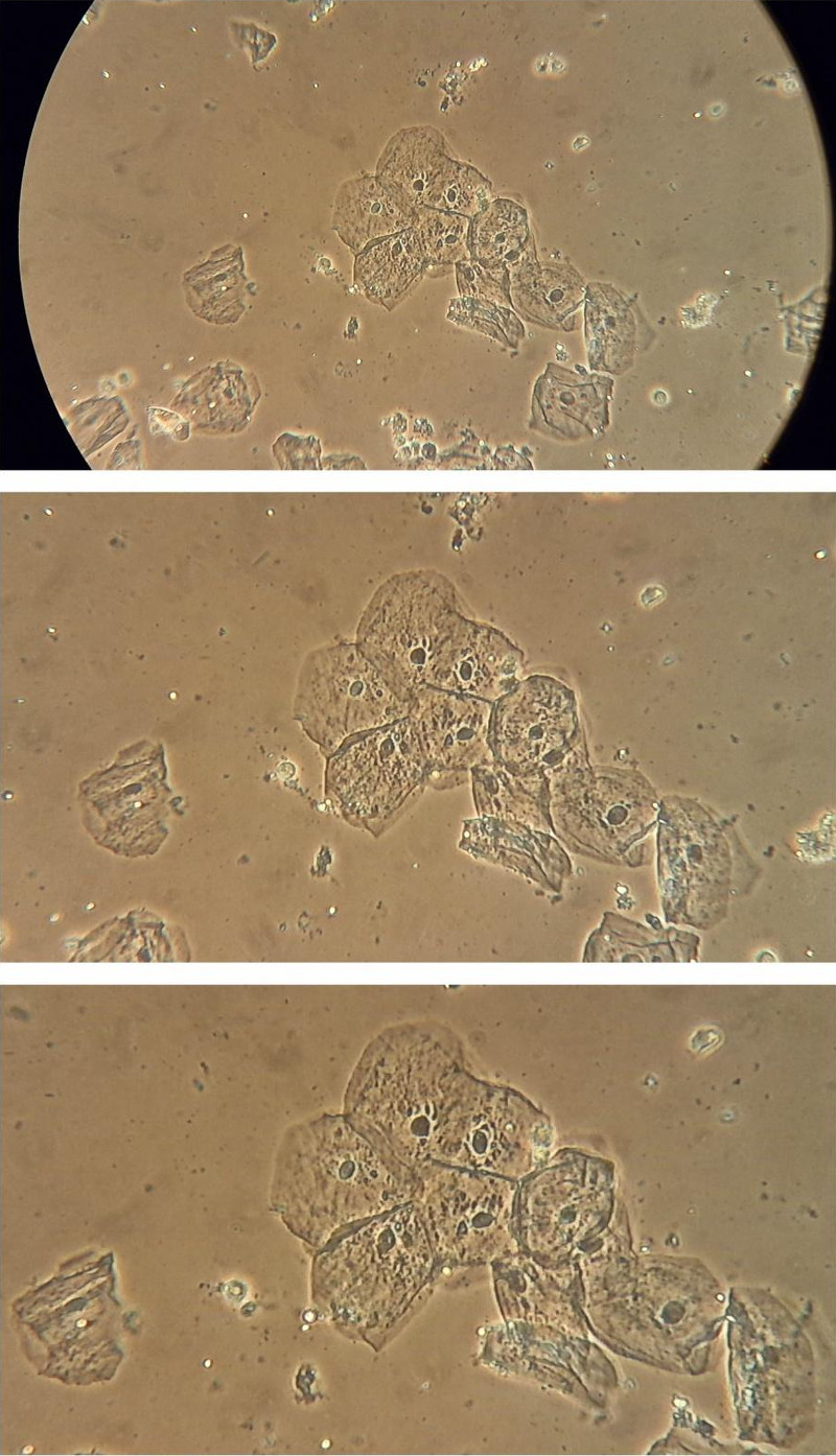 Fig. 10. Image from camera used with Leica teaching-level microscope Leitz HM Lux 3, objective: Phaco L 32/0 40, eyepiece: Periplan GF 10x/18 (for eyeglasses wearers). Wet-mount slide of epithelial cells, phase contrast, image created with simple annular phase rings (without Köhler illumination) micrograph without zoom (top), zoom factor 3x (middle), zoom factor 4x (bottom).