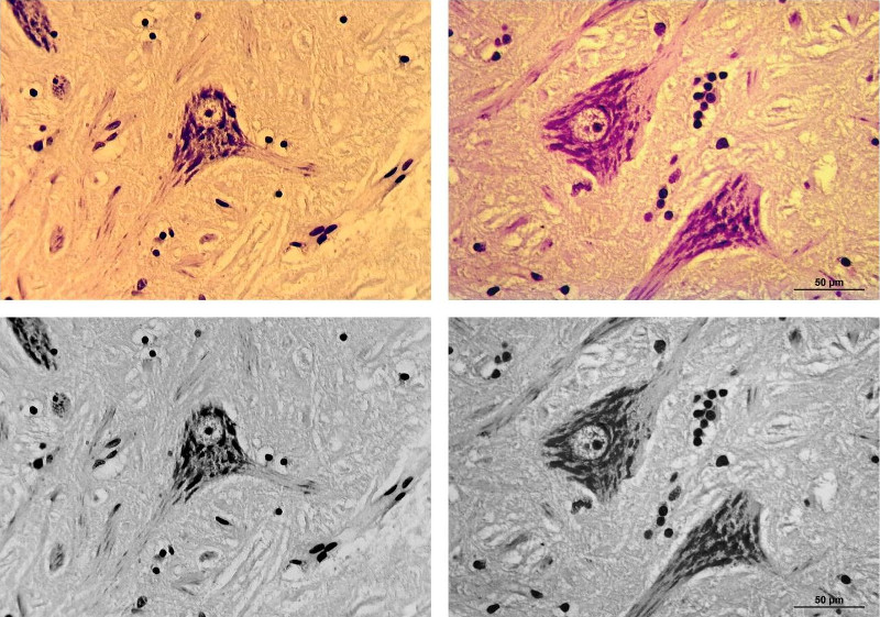 Fig. 17. Nerve cell specimen from Figs 7-9 and 11, Microscope: Leica DMLB, Objective: Plan 40x, bright-field, tested camera used with Meiji eyepiece (left), Leica camera MC 170 HD (right), color images (above), black-and-white conversions (below).